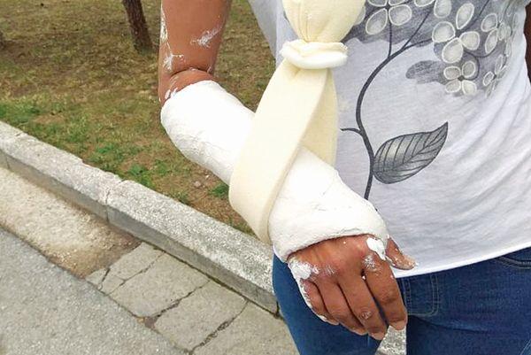 Ὅταν τά ΜΑΤ τοῦ ΣΥΡΙΖΑ ἔσπαγαν χέρια διαδηλωτῶν στίς Πρέσπες, σιωπή…