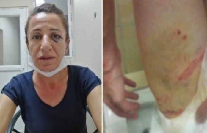 Τρεισήμισι ώρες βασάνιζε η τουρκική αστυνομία Κούρδισσα Δήμαρχο στο ίδιο της το σπίτι κατόπιν εφόδου με άγρια σκυλιά