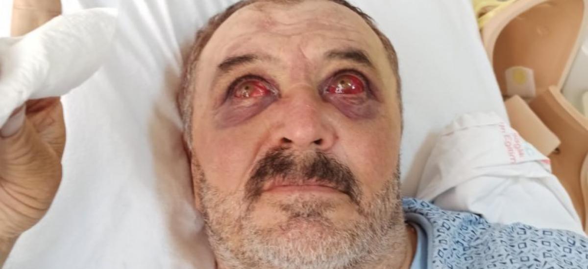 Βασανιστήρια σε Κούρδους στην Τουρκία του Ερντογάν – Μετά μας φταίει ο Λουκασένκο