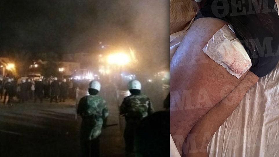 Ορεστιάδα – Άγρια επίθεση σε αστυνομικούς: «Μας φώναζαν θα πεθάνετε»