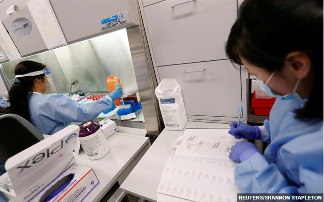WSJ: Από εργαστήριο διέρρευσε ο ιός, σύμφωνα με έρευνα κρατικού εργαστηρίου